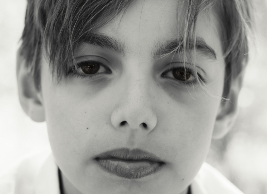 Black and white close up image of a young boy looking at the camera Larissa Hill Photography photographing special needs kids